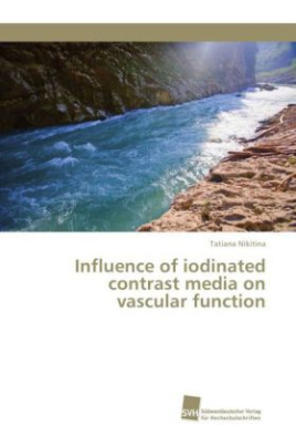Influence of iodinated contrast media on vascular function